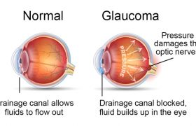 What Is Glaucoma? Causes and Symptoms