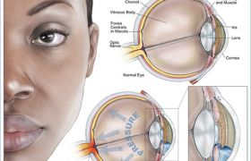 What is the Primary Open Angle of Glaucoma?