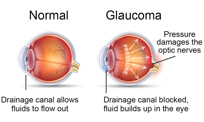 glaucoma cause